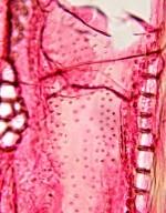 MYRTACEAE Corymbia gummifera