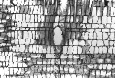 MONIMIACEAE Hedycarya angustifolia