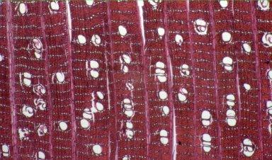 ANNONACEAE Duguetia echinophora