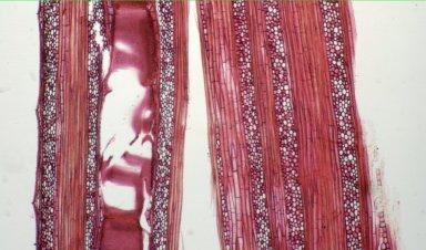 ANNONACEAE Friesodielsia soyauxii