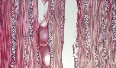 ANNONACEAE Neostenanthera robsonii