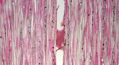ANNONACEAE Xylopia surinamensis