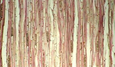 APOCYNACEAE Rauvolfia pachyphylla