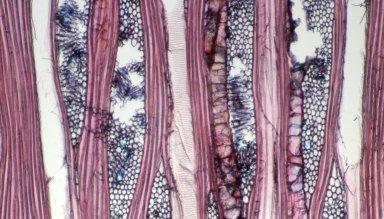 ARALIACEAE Boerlagiodendron novoguineensis