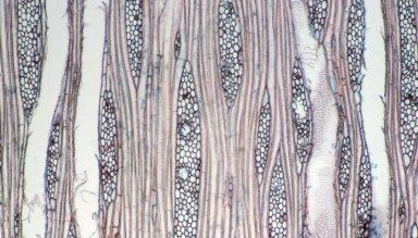 ARALIACEAE Cussonia angolensis