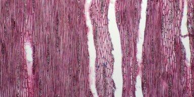 BIGNONIACEAE Markhamia tomentosa