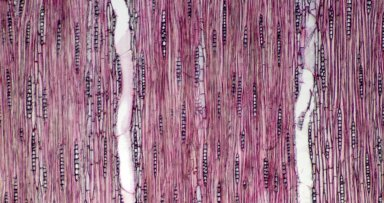 BIGNONIACEAE Tabebuia stenocalyx