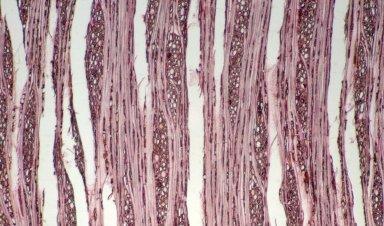 CALOPHYLLACEAE Marila macrophylla