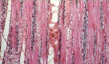 MALVACEAE BOMBACOIDEAE Scleronema micranthum