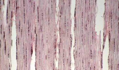 BURSERACEAE Protium amazonicum