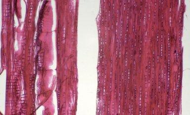CELASTRACEAE Salacia amplectens