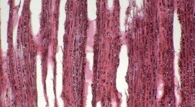 CELASTRACEAE Salacia debilis