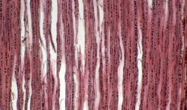 CELASTRACEAE Salacia elegans