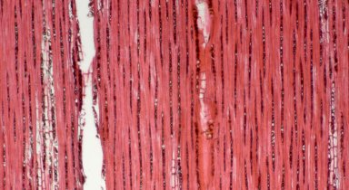 CHRYSOBALANACEAE Licania robusta