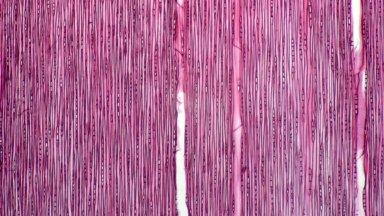 CONNARACEAE Connarus incomptus