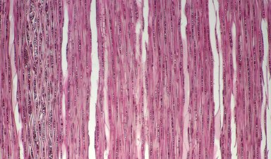 BETULACEAE Corylus avellana