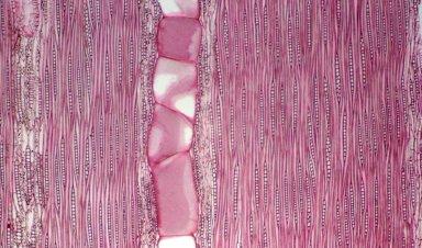LEGUMINOSAE DETARIOIDEAE Brachystegia nigerica