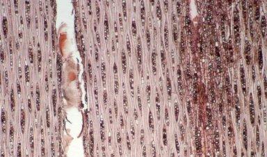LEGUMINOSAE DETARIOIDEAE Brownea macrophylla