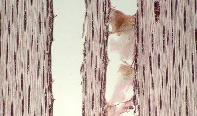 LEGUMINOSAE CAESALPINIOIDEAE Sclerolobium albiflorum