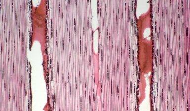 LEGUMINOSAE CAESALPINIOIDEAE Sclerolobium micropetalum