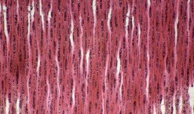 ERYTHROXYLACEAE Erythroxylum argentinum
