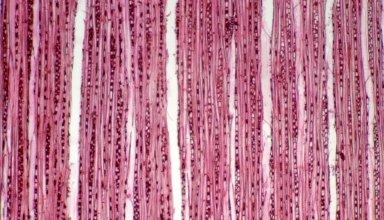 PHYLLANTHACEAE Antidesma pulvinatum