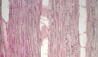 EUPHORBIACEAE Klaineanthus gabonii
