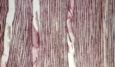 EUPHORBIACEAE Macaranga conifera