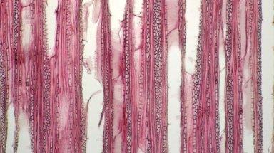 PHYLLANTHACEAE Phyllanthus muellerianus
