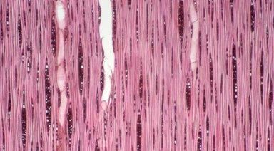 HYPERICACEAE Vismia latifolia