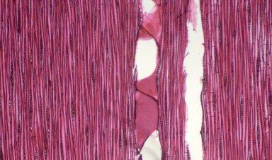JUGLANDACEAE Pterocarya fraxinifolia
