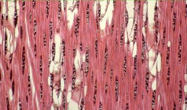 LAURACEAE Cinnamomum parthenoxylon