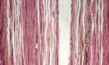 LOGANIACEAE Strychnos spinosa