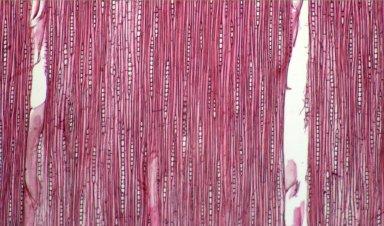 MELIACEAE Trichilia lepidota