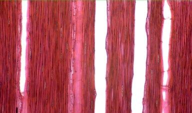 LEGUMINOSAE CAESALPINIOIDEAE Mimosoid Clade Acacia mangium