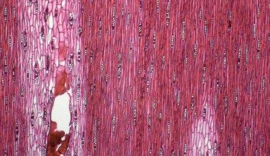 LEGUMINOSAE CAESALPINIOIDEAE Mimosoid Clade Albizia attopeuense
