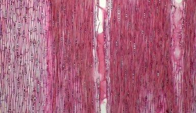 LEGUMINOSAE CAESALPINIOIDEAE Mimosoid Clade Archidendron aruense