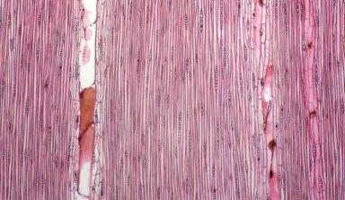 LEGUMINOSAE CAESALPINIOIDEAE Mimosoid Clade Archidendron globosum