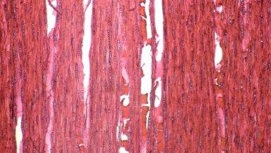 LEGUMINOSAE CAESALPINIOIDEAE Mimosoid Clade Archidendropsis basaltica