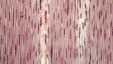 LEGUMINOSAE CAESALPINIOIDEAE Mimosoid Clade Hydrochorea corymbosa