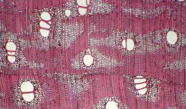 LEGUMINOSAE CAESALPINIOIDEAE Mimosoid Clade Inga capitata