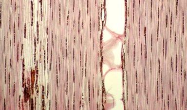 LEGUMINOSAE CAESALPINIOIDEAE Mimosoid Clade Inga lateriflora