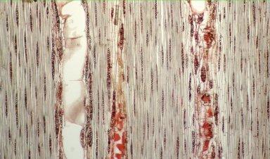 LEGUMINOSAE CAESALPINIOIDEAE Mimosoid Clade Inga pezizifera