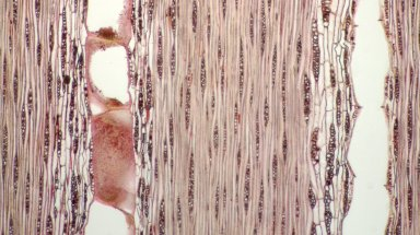 LEGUMINOSAE CAESALPINIOIDEAE Mimosoid Clade Inga rhynchocalyx