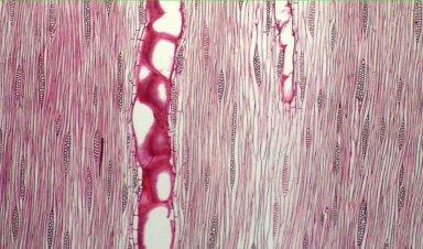LEGUMINOSAE MIMOSOIDEAE Leucaena esculenta
