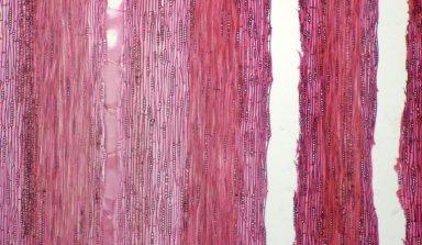 LEGUMINOSAE CAESALPINIOIDEAE Mimosoid Clade Zygia juruana