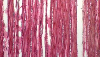 MELASTOMATACEAE Bucquetia glutinosa