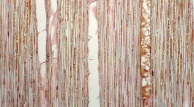 MELASTOMATACEAE Miconia amplexans