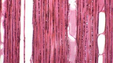 MELASTOMATACEAE Miconia ruficalyx