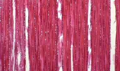 MELASTOMATACEAE Tococa macrophysca
